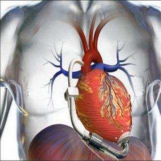 نارسایی قلبی حاد