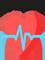 دکتر پرآذران فوق تخصص قلب و عروق