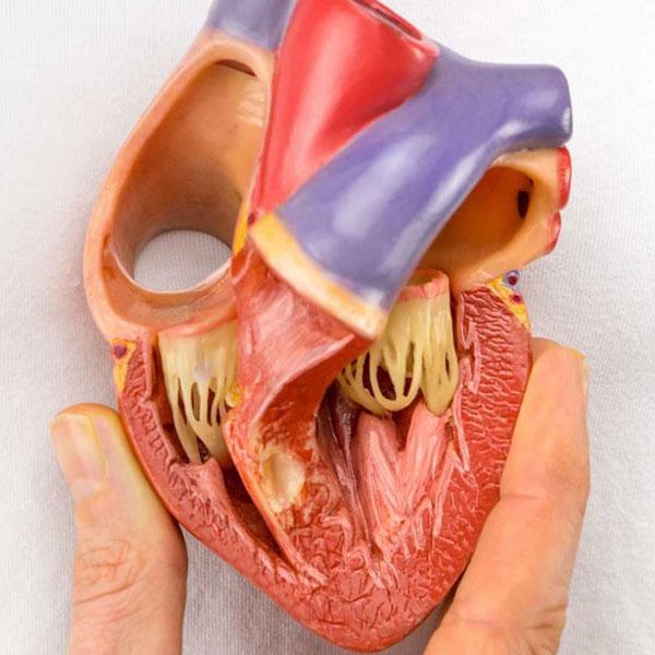 درمان بیماری قلبی مادرزادی