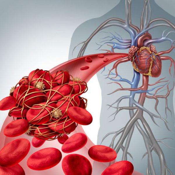 چگونه از ایجاد لخته خون در رگ ها جلوگیری کنیم
